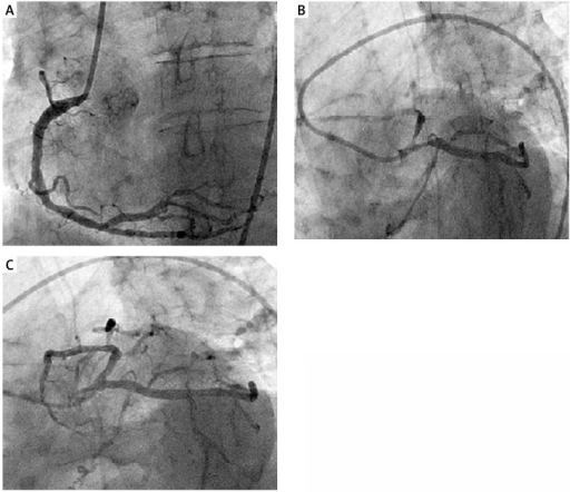 A – Right coronary angiography showing diffuse coronary artery disease. B – Left coronary angiography showing critical stenotic lesions at the ostia of the LAD and LCX arteries. C – Left coronary angiography demonstrating resolution of critical lesions at the ostia of the LAD and LCX arteries after intracoronary nitroglycerine administration