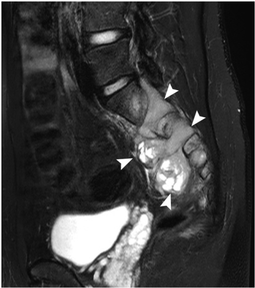21-year-old man with paraspinal extraskeletal Ewing sarcoma family of tumors.Sagittal T2-weighted, fat-saturated magnetic resonance imaging scan shows hyperintense, dumbbell-shaped, extradural tumor left of S1-3. Tumor was connected to extraspinal component through neural foramen (arrowheads).
