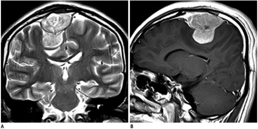 19-year-old man with primary extraaxial brain extraskeletal Ewing sarcoma family of tumors.A. Coronal T2-weighted magnetic resonance imaging (MRI) scan shows hyperintense, dural-based mass in right frontal region. B. Sagittal post-gadolinium T1-weighted MRI scan shows intense contrast enhancement.