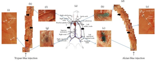 Stereomicroscopic images of lymph ducts in which Alcian blue and Trypan blue had been injected. (a) Illustration of the left and the right lymph ducts along the epigastric blood vessels (thick arrows) in skin. (b) Left axillary node (open arrow) which became blue due to the Alcian blue that flowed in the lymph duct. (c) Left inguinal node (open arrow) into which Alcian blue had been injected. (d) Mosaic of images of the left lymph duct along the epigastric blood vessel (thick arrows). (e) Magnified image of the rectangular area in (d). The blue threadlike structure was the primo vessel (arrow), and it was floating in the lymph duct (double arrows). (f) Right axillary node (open arrow) weakly stained by Trypan blue that flowed from the inguinal node through the lymph duct. (g) Right inguinal node (open arrow) into which Trypan blue had been injected. (h) Mosaic images of the right lymph duct from the inguinal node to the axillary node in which Trypan blue flowed. The epigastric blood vessel is indicated with thick arrows. (i) Magnified image of the rectangular area in (h). The lymph duct (double arrows) was washed clean, and the PVS was not stained. More details are presented in Figure 3.