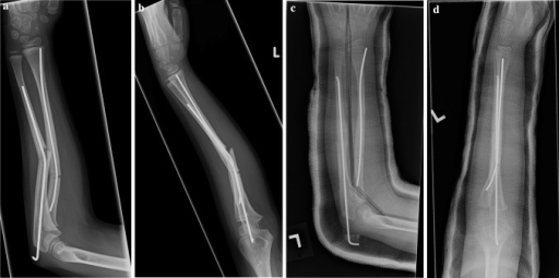 Anteroposterior (a) and lateral (b) radiographs of a 6 year old girl (Patient 1) who sustained a refracture after a trip and fall. She was treated with rebending of the radial implant and removal and replacement of the ulnar implant (c, d)