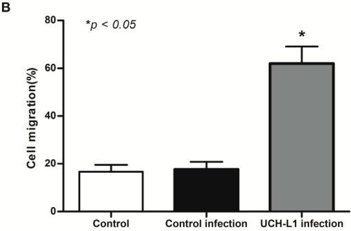 UCH-L1 overexpression induced podocyte hypermotility as assessed by cell migration assay. (A) Differentiated podocytes were infected with UCH-L1 overexpression adenoviral vector. Control cells were treated with vehicle vector or were not treated. Then subsequently scratch was processed using a 0.1 mL pipette. The observation was made immediately after scratch (0:00 h) and at 24:00 h, Original magnification, 200×; (B) quantification of the cell migration area by computerized morphometric analysis. Data are given as means + SD. n = 20 areas from three independent experiments. * p < 0.05 versus control group and control infection group, respectively.