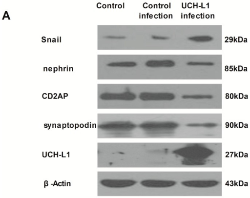 UCH-L1 overexpression induced changes of expression of several proteins in podocytes. Differentiated podocytes were infected with UCH-L1 overexpression adenoviral vector for 48 h. Control cells were treated with vehicle vector or were not treated for 48 h. Podocytes lysate proteins (60 μg) were analyzed respectively by western blot using murine corresponding antibodies and β-Actin was used as control for protein loading. (A) Western blot assay of UCH-L1, synaptopodin, CD2AP, nephrin and Snail; (B) corresponding statistic histogram of UCH-L1, synaptopodin, CD2AP, nephrin, and Snail protein expression. Data representative of three independent experiments. * p < 0.05, ** p < 0.01 both versus control group and control infection group.