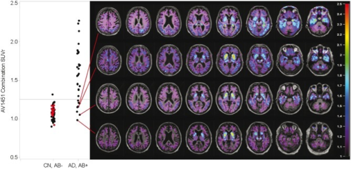 Aβ+ subjects with low cortical average SUVR values. Subjects with low flortaucipir SUVr values may still have abnormal tracer retention in limited cortical regions. AD = Alzheimer's disease; CN = cognitively normal; ROI = region of interest.
