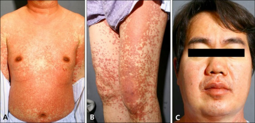 (A, B) Disseminated, erythematous, maculopapular rashes of various sizes on the entire body, including the trunk and extremities. (C) The face affected with erythematous edema.