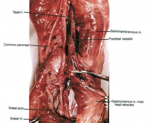 tibial nerve; common peroneal nerve; soleal arch; soleal muscle; semimembranosus muscle; popliteal vessels; gastrocnemius muscle