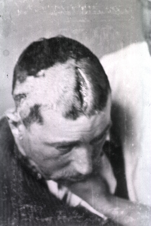 <p>View of an open wound extending from the top of the patient's head to his forehead.</p>