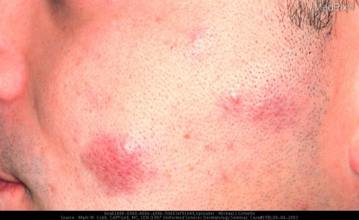 SECONDARY CUTANEOUS B-CELL LYMPHOMA, FOLLICULAR CENTER CELL TYPE