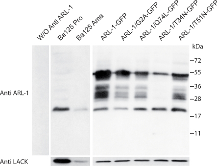 Expression of LdARL-1 and mutants in L. amazonensis.Extracts of 3.106 exponentially growing L. amazonensis promastigotes (about 3 µg of proteins) were submitted to western blot analysis using the rabbit anti-LdARL-1 C-terminus immune serum (1∶5000 dilution); color was developed with an anti-rabbit IgG peroxidase conjugate (1∶10000 dilution) and an ECL revelation kit (Amersham). Internal standard: 37 kDa LACK antigen. Left, negative control without anti-LdARL-1 antiserum. Additional bands are revealed when the GFP-fused proteins are expressed, probably due to partial degradation when the cells were lysed, in spite of the presence of antiproteases (see Methods).