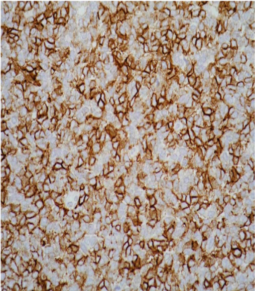 Immunohistochemical staining showing a diffuse expression of the cluster of differentiation 99 antigen.