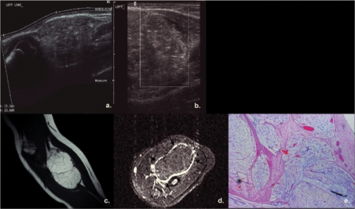 An 8-year-old girl presented with 'cystic' swelling of the left forearm due to lipoblastoma. Ultrasound (extended longitudinal view (a), sagittal view (b)) revealed a slightly lobulated heterogeneous mass of low vascularity (b), in close proximity to muscles. On MRI images, the lobulated lesion did not exhibit any aggressive features, appeared as high signal on T1W (c) and suppressed signal on STIR (d), suggesting the presence of fat. Prominent symmetrically distributed vessels in the periphery of the lesion became evident on axial STIR images (arrows) (d). (e) Low power photomicrograph demonstrating the lobulated nature of the tumor with fatty lobules separated by fibrous septae (H&E, original magnification ×20).