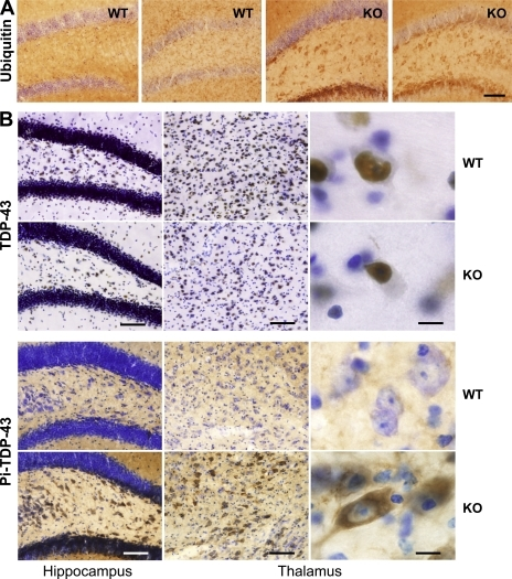 Increased ubiquitination and phosphorylation of TDP-43 in the PGRN-deficient brain. (A) Enhanced ubiquitin immunostaining in the hippocampus of old PGRN-deficient mice. Sections from 18-mo-old WT and PGRN-deficient (KO) mice (n = 5) were stained using antibody against ubiquitin. Representative sections from two different mice in each group are shown. Bar, 80 µm. (B) Phosphorylation of TDP-43 and its cytosolic translocation in aged PGRN-deficient (KO) mice. Hippocampal and thalamic sections from 18-mo-old WT and PGRN-deficient mice (n = 5) were stained with antibodies against TDP-43 (top) or phosphorylated TDP-43 (bottom). Bars: (left and middle) 80 µm; (right) 12 µm.