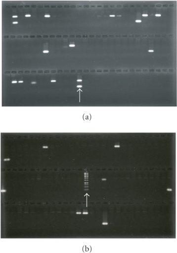 Agarose gels showing positive amplification of the Pst BAC clones using multiplex PCR with primer pairs PSTCY32GT1071F/R (upper bands) and PST78SP3H2F/R (lower bands). (a) Amplification of 58 BAC plate pools to identify positive pools. (b) Amplification of row and column pools of a positive plate to identify individual positive clones. The arrow in (a) indicates the bands amplified with Pst genomic DNA and in (b) indicates molecular size marker.