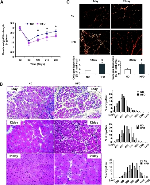 An HFD delays the recovery of and increases fibrosis in regenerating muscle. A: The weights of injured tibialis anterior muscles (normalized to the length of the tibia) were decreased in mice fed the HFD for 8 months. Muscles were obtained at 6, 12, 21, and 28 days after injury and compared with results from mice fed the normal diet (ND). n = 12 in each group. B: Hematoxylin-eosin sections of injured tibialis anterior muscles from HFD (right panel) and normal diet (left panel) mice revealed smaller regenerating myofibers (detected by their central nuclei). There also was an increase in interstitial space of muscle. The distribution of cross-sectional areas of new myofibers was shifted leftwards compared with values in mice fed a normal diet. C: Sirius red staining revealed an increase in collagen deposition at 12 (left panel) and 21 (right panel) days after injury in HFD mice. The collagen-containing area was significantly increased in muscles of HFD mice compared with results from muscles of mice on a normal diet (n = 6 in each group). *P < 0.01. d, days. (A high-quality digital representation of this figure is available in the online issue.)