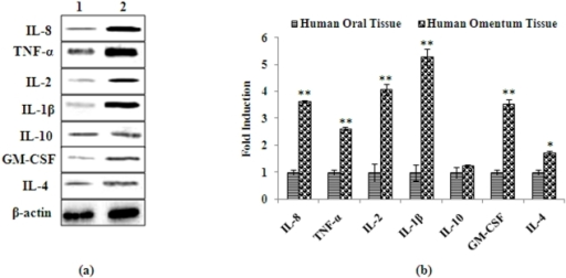 Protein expression of markers associated with inflammation in human omentum tissue.(a) Alterations in the expression of proteins involved in the induction of inflammatory cytokines in human omentum tissue. Normal oral submucosal tissue was used to compare the changes in protein of pro and anti-inflammatory cytokines (Figure 4 a). Lane (1): Normal oral submucosal tissue; Lane (2): Human omentum tissue. Molecular weight of protein studied: IL-1β (17 kDa), IL-2 (15 kDa) IL-4 (17 kDa), IL-8 (11 kDa), IL-10 (20 kDa), TNF-α (26 kDa) GM-CSF (16 kDa) and β-Actin (42 kDa) for normalization. (b) Relative quantification of alterations in the protein expression of cytokines in human omentum tissue. Normal oral submucosal tissue was used to compare the changes in protein of pro-inflammatory cytokines. β-Actin was used as internal control to normalize the data. Quantification (densitometry) was done in Gel Documentation System (Alpha Innotech, USA) with the help of AlphaEase™ FC StandAlone V.4.0 software. *P<0.05- significant, **P<0.01- highly significant.