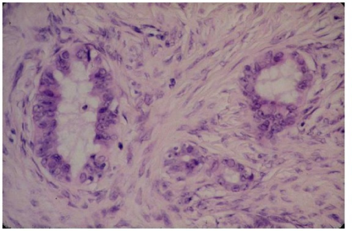 Nuclear abnormalities in ovarian epithelial dysplasia (HES, ×40), from Dr. L. Deligdisch collection.