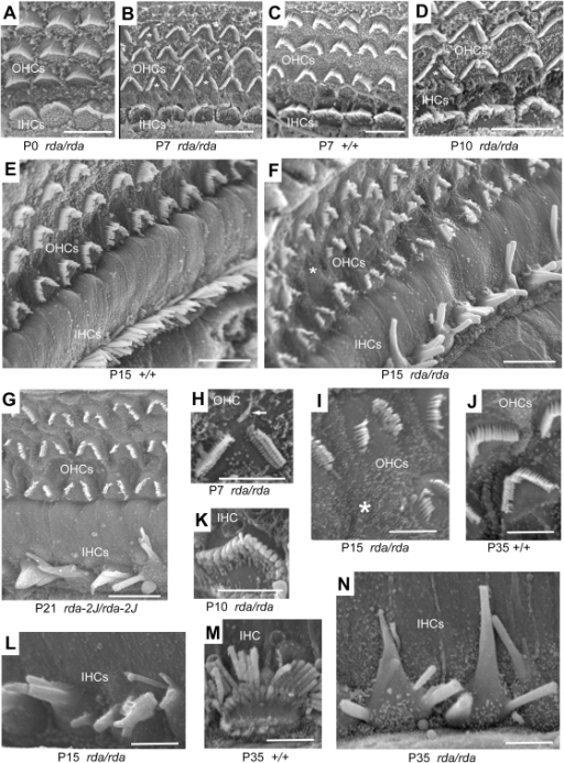 Cochlear hair cell abnormalities in rda and rda2J mutan ...