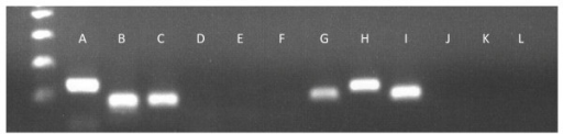 Alternative splicing validations for two genes using PCR with cDNA as the template. Lanes A and B correspond to the two fragment sizes for the gene AP2B1 (134 and 92 bp) while G and H represent the two transcripts for ZDHHC16 (97 and 118 bp). Lanes C and I are positive controls (GBG5, 115 bp) while D, E, F, J, K, and L are negative controls.