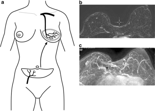 a The DIEP flap is supplied by intramuscular perforators from the deep inferior epigastric artery and vein. b Axial fat-saturated T1W images with post-contrast gadolinium injection. c 3D reformatted axial image show replacement of the normal glandular tissue of the breast with lower abdominal fat and the anastomosis of the vascular pedicle (arrow) by microsurgical technique to the internal mammary artery. For comparison, note the normal glandular tissue in the left breast