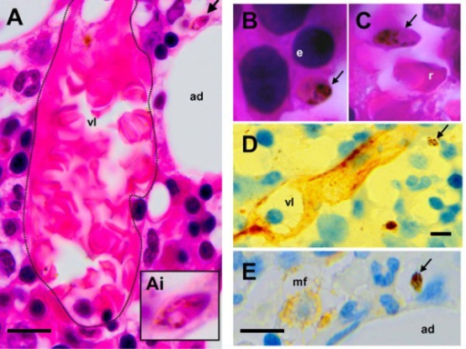 A (arrow and Ai insert) and B: HES-stained bone marrow sections showing immature gametocytes - elongated shape, pink and purple staining, finely distributed pigment – outside small vessels (vl) and in close contact with resident cells such as adipocytes (ad) or erythroblasts (e). The dotted line in A highlights the vessel wall. C: Mature stage V gametocyte close to a mature red blood cell (C, r) in the lumen of a vessel. D and E: Immunohistochemistry (antibodies revealed with peroxydase) showing gametocytes (arrows) distant from CD34-positive vascular structures (vl) or CD68-positive macrophages (mf).
