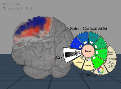 Importance-Driven Volume Rendering Design: A view-dependent cutout is created to the premotor cortex area (blue). Furthermore, this screenshot shows the application when changing the opacity of the cortical area via pie menu.