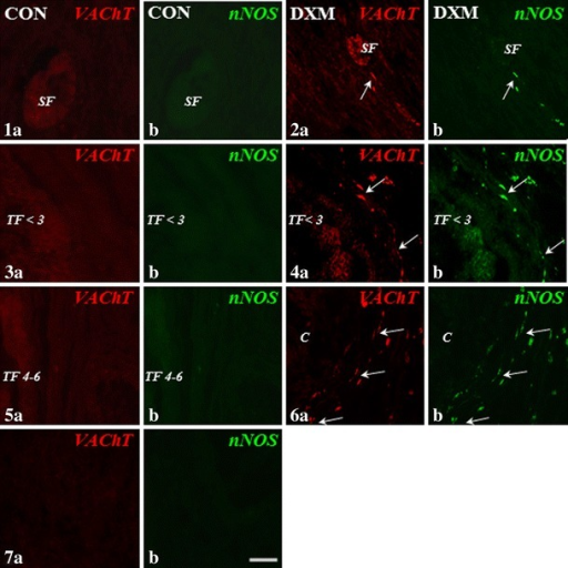 Immunohistochemical localization of VAChT- and nNOS-IR nerve fibres in the cortical part of the ovary of the control (CON) and DXM-treated (DXM) gilts. Lack of VAChT and/or nNOS-IR nerve fibres around the secondary (1a and b, respectively) and tertiary follicles (up to 3 mm; 3a and b, respectively; 4–6 mm in diameter; 5a and b, respectively) in the CON group. Nerve fibres containing VAChT and/or nNOS near the secondary (2a and b, respectively) and tertiary up to 3 mm (4a and b, respectively) follicles and cyst (6a and b, respectively) in the DXM group. The co-localization of VAChT and nNOS in the same nerve fibres supplying secondary (2a and b) and tertiary up to 3 mm (4a and b) follicles and cyst (6a and b) in the cystic-changed ovaries. Negative control for VAChT (7a) and nNOS (7b) in the ovary of the CON gilt. Arrows, nerve fibres; SF secondary follicle, TF <3 tertiary follicle up to 3 mm in diameter, TF 4–6 tertiary follicle 4–6 mm in diameter, C cyst. Scale bar 25 μm