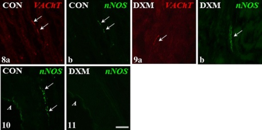 Immunohistochemical localization of VAChT- and nNOS-IR nerve fibres in the medullar part of the ovary of control (CON) and DXM-treated (DXM) gilts. A decrease in the number of VAChT-IR nerve fibres in the area of the ground plexus in the DXM group (9a) compared to the CON group (8a). Nerve fibres containing nNOS observed in the area of this structure in the CON group (8b) and the same number of these nerve fibres forming bundles (9b) found after DXM injections. The presence nNOS-IR nerve fibres in the vicinity of an artery in the control gilt (10) and their lack in the ovary of DXM-treated animal (11). Co-localization of VAChT and nNOS in the same nerve fibres in the area of the ground plexus (8a and b) in the CON group. Arrows, nerve terminal; A artery. Scale bar 25 μm