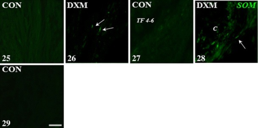 Immunohistochemical localization of SOM-IR nerve fibres in the cortical part of the control (CON) and DXM-treated (DXM) gilts. SOM-IR nerve fibres were not observed within the ground plexus (25) as well as around the tertiary follicles (4–6 mm in diameter; 27) in the control gilts, while they were present in the ovaries of DXM-treated gilts (26 and 28, respectively). Negative control for SOM (29) in the ovary of the CON gilt. Arrows, nerve fibres; TF 4–6 tertiary follicle 4–6 mm in diameter, C cyst. Scale bar 25 μm
