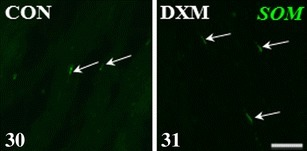Immunohistochemical localization of SOM-IR nerve fibres in the medullar part of the control (CON) and DXM-treated (DXM) gilts. An increase in the number of the SOM-IR nerve fibres in the area of the ground plexus in the DXM group (31) compared to the CON group (30). Arrows, nerve fibres. Scale bar 25 μm