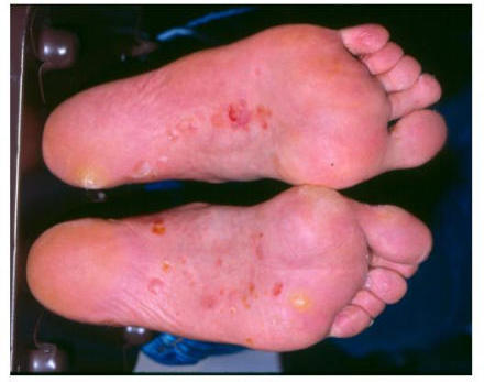 Toe Fungus - Treatment, Symptoms & Causes