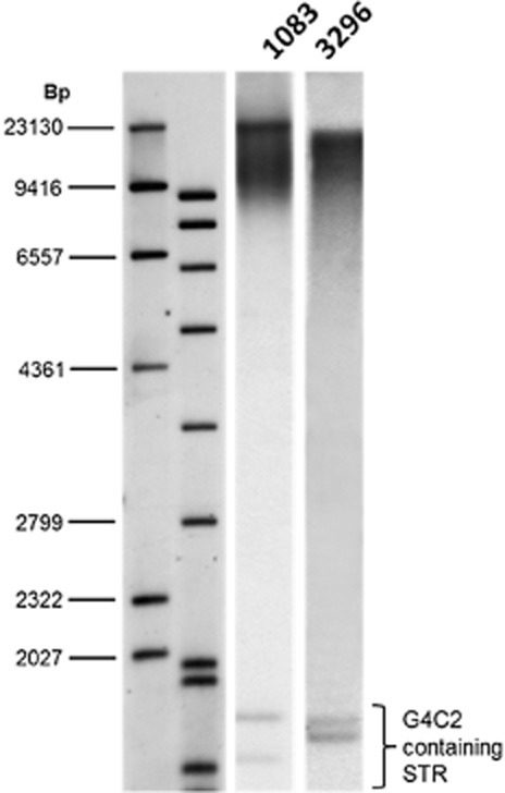 Presence of a heterozygous hexanucleotide expansion in C9orf72. Southern blot analysis on DNA using a probe directed to the hexanucleotide repeat (GGGGCC)5shows the presence of an expansion in cases 2.1 and 2.2. The presence of a large expansion was confirmed by Southern blotting which revealed a maximum repeat number in the DNA from brain from patient 1 (PDG1083) as 4153 repeats, minimum 1205 (modals measured at 3822, 2500 and 2050 repeats), and in DNA from peripheral lymphocytes from patient 2 (PDG 3296) a maximum of 3316 was measured and minimum of 812 (modal 2780).