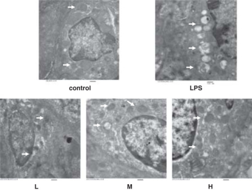 Lung Ultrastructure. Effect of H2S on mitochondrial ultrastructure in lung cells, as determined by transmission electron microscopy analysis, in LPS-Induced ALI rat model (original magnification × 25000). There were significant differences in the ultrastructure of mitochondria in lung cells in the control group (control) and LPS injury group (LPS). The mitochondria in lung cells from the LPS group were swollen with disrupted or disintegrated cristae and the osmiophilic lamellar bodies were fusion or disappeared. This mitochondrial damage was lightly mitigated in the LPS + low-dose NaHS group (L), and were significantly mitigated in LPS + middle-dose NaHS group (M) and high-dose NaHS group (H). Arrows indicate mitochondria in lung cells. Bar, 500 nm.