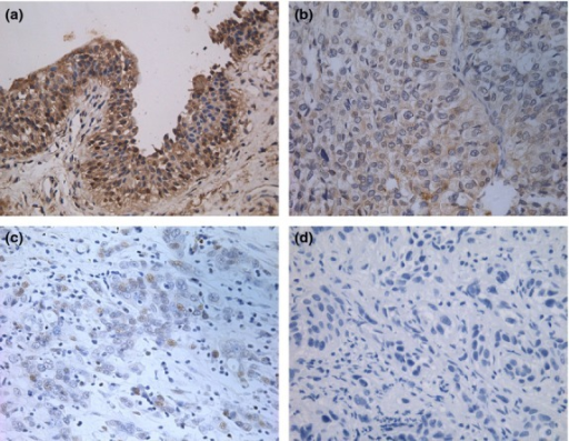 Expression of DOC-2/DAB2 interactive protein (DAB2IP) in urothelial carcinoma of the bladder (UCB) tissues and bladder urothelium controls by immunohistochemistry. (a) High expression of DAB2IP in normal bladder urothelium scored as 7 (magnification, ×200). (b) High expression of DAB2IP in low-grade UCB tissue scored as 5 (×200). (c) Low expression of DAB2IP in high-grade UCB tissue scored as 2 (×200). (d) Low expression of DAB2IP in high-grade UCB tissue scored as 0 (×200).
