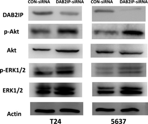 Increased Akt and ERK1/2 activation in T24 and 5637 bladder urothelial cancer cells transfected with specific siRNA (DAB2IP-siRNA) compared to negative control (CON-siRNA). Tissue lysates were analyzed by Western blot using DOC-2/DAB2 interactive protein (DAB2IP), phospho- (p-)Akt (S473), p-ERK1/2 (T202/Y204), total-Akt, and total-ERK1/2. Actin was used as a loading control.