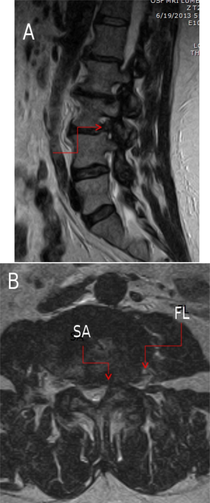 A: Sagittal MRI (the red arrow identifies the foraminal herniated nucleus pulposus (HNP)). B: Sub-articular (SA) and far-lateral (FL) disc herniations.