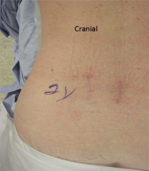 Pre-operative back showing two previous surgical incisions.