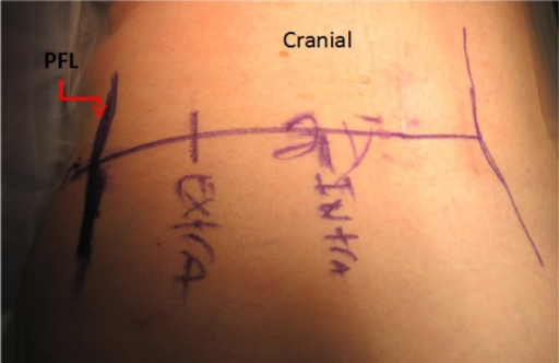 Intradiscal starting (INTRA) line more medial and extra discal / intra foraminal (EXTRA) starting line more lateral. Dark line is posterior facet line (PFL).