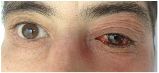 left eye hyperemia and exophthalmos due to sphenoidal b | open-i, Human Body