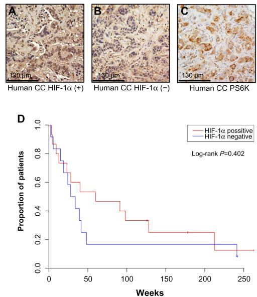 HIF-1α is variably expressed in a UNC cohort of human CC and may influence disease severity.Notes: (A and B) human CC tumors were stained for HIF-1α expression, demonstrating an example of high expression (A) and low expression (B). Human tumors were also stained for phosphor-S6, with all tumors displaying positive expression of this marker, example shown in (C). (D) Kaplan–Meier curve demonstrates survival data from a cohort of 27 human CC patients based on HIF-1α expression.Abbreviations: UNC, University of North Carolina; CC, cholangiocarcinoma.