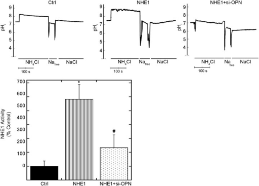 Downregulating OPN reduces NHE1-induced cardiomyocyte-hypertrophy and NHE1 activity.Cardiomyocytes plated on coverslips were incubated with BCECF-AM and induced with an acid load using 50 mM NH4Cl. The rate of recovery following the acid induction was measured and used as an indicator of NHE1 activity. Upper panel, representative traces of NHE1 activity assay in H9c2 cardiomyocytes infected with GFP (control) or NHE1 in the presence and absence of siRNA OPN for 24 hours; lower panel, quantification of NHE1 activity (10–14 coverslips, from 3–4 experiments). Results are expressed as % of control (GFP) ± %SEM. *p < 0.05 vs. control, # vs. NHE1.