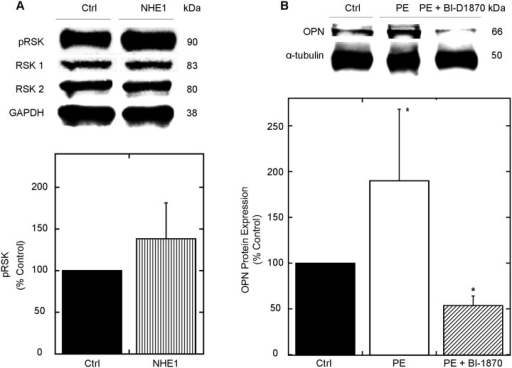 OPN contributes to NHE1-induced cardiomyocyte-hypertrophy through RSK.A. Upper panel: Representative western blot of relative amounts of phosphorylated and total expression of RSK in NRVMs infected with GFP (control) or active NHE1. Immunoblotting was against phosphorylated and total RSK (80–90 kDa) and normalized to GAPDH (38 kDa); lower panel, quantification of experiments measuring the ratio of phosphorylated to total protein for RSK. Results are expressed as % of control (GFP) ± %SEM (n = 4; representative of 2 preparations). B. H9c2 cardiomyoblasts were treated with PE and/or BI-D1870 (10 μM) for 24 h. Cells were lysed and equal amounts of protein were analyzed by SDS-PAGE/immunoblot Immunoblotting was against OPN (doublet at 66 kDa) and α-tubulin (50 kDa); lower panel, quantification of relative levels of OPN protein expression (n = 4–5; representative of 5 experiments). Results are expressed as % of control ± %SEM. *p < 0.05 vs. control.