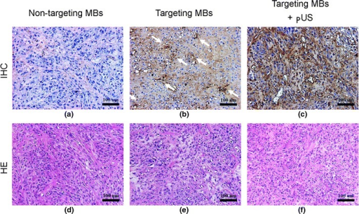 Histopathologic analysis. a–c Qualitative assessment of immunohistochemical staining (IHC; upper row) demonstrating low EGFR in non-targeting MB treatment group (b), and high EGFR intensity in tumor vessels of targeting MB treatment group in both tumor vessels and tissues of targeting MB combined with pUS treatment group (c); d–f HE staining revealing similar histology in all three treatment groups