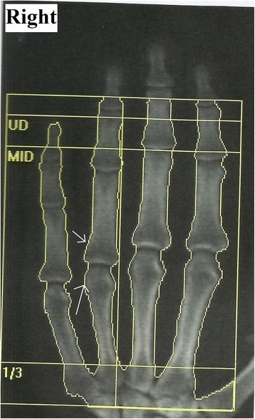 DEXA scan showing regional osteoporosis of right hand bones with juxta articular osteopenia (arrows).