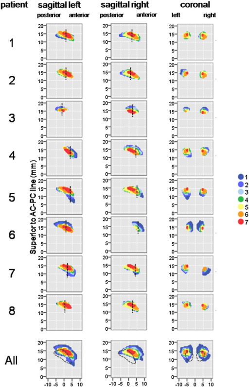 Anatomical variation and cross-sectional overlap between patients.The relationship between each individual anatomical model and the whole patient group and anatomic atlas is presented. Each individual ANT model (one to eight) is demonstrated in the AC–PC coordinate system. The colors represent the degree of overlap (from 1–7) with the whole patient group, thus illustrating the deviation of a particular patient from the whole patient group. The vertical dashed line in sagittal ANT models represents the level of the coronal ANT model in y-axis. Since the coronal models were delineated from STIR image slices visualizing the mammillothalamic tract, the line also illustrates the anatomical relationship between the junction of mammillothalamic tract and ANT in individual patients. In the lower part of the image, the degree of overlap is presented in the whole patient group together with delineation of ANT in the Schaltenbrand atlas (dashed outlines). The data demonstrate that ANT was located more laterally, superiorly and anteriorly in 3 T MRI in this patient group compared to the anatomical atlas.