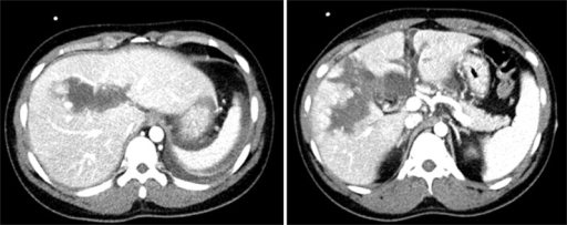 Follow-up abdominal CT on the follow-up day 5 showing a slight decrease in the size of parenchymal hematoma.