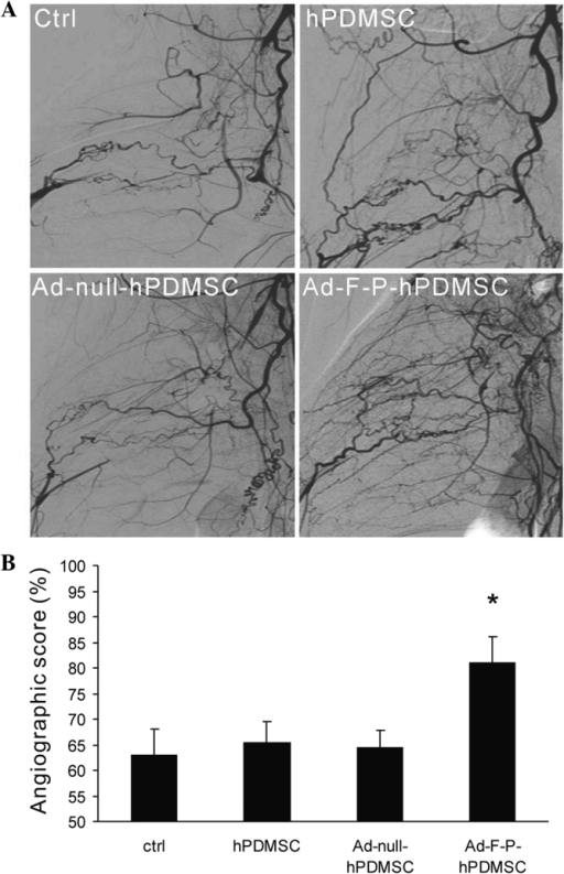 Angiographic assessment of collateral vessel formation. (A) Angiography was performed 28 days after cell therapy. More collateral vessels were visualized in the Ad-F-P-hPDMSC group. (B) Quantification of angiographic score. Genetically-modified hPDMSCs robustly enhanced collateral vessel formation. *P<0.05 vs. control group. hPDMSC, human placenta-derived mesenchymal stem cell; AD-F-P, adenoviral bicistronic vector containing FGF2 and PDGF-BB; Ad-, control vector; ctrl, control without PDMSCs.