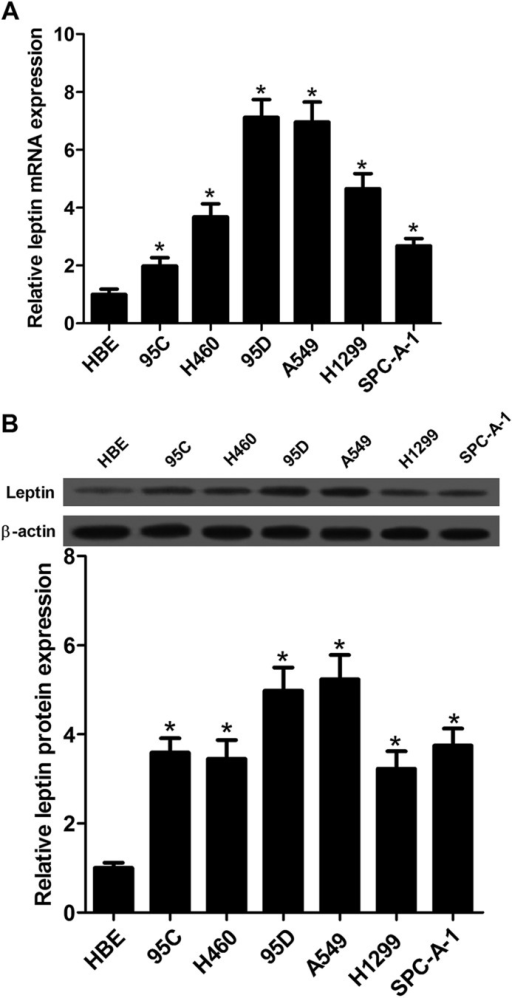 Detection of leptin expression in NSCLC cell lines. (A) Levels of leptin expression in HBE, 95C, H460, 95D, A549, H1299 and SPC-A-1 cells were determined by qRT-PCR. (B) Western blot analysis was employed to detect the protein expression levels of leptin in NSCLC cell lines. Data expressed as mean± s.e.m.; *P<0.05 compared to HBE cells.