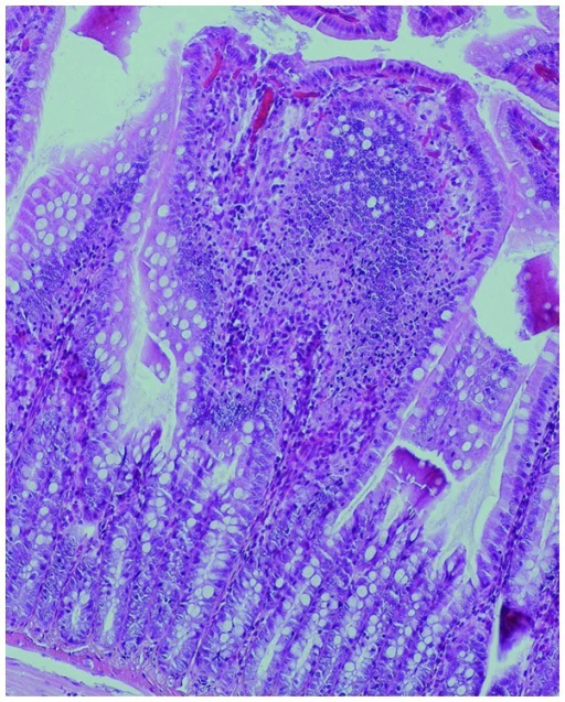 Infiltration and accumulation of neutrophils together with epithelial structural damage in the intestinal mucosa of a rat from the chronic obstructive pulmonary disease group. Hematoxylin and eosin staining; high magnification (×100).
