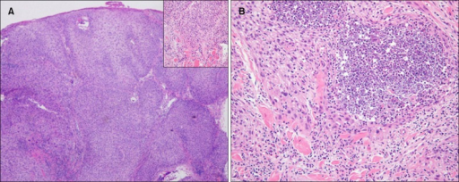 Histopathological findings of the excised tumor at (A) low magnification (H&E, ×40) shows poorly-differentiated squamous cell carcinoma showing diffuse invasion. Superficial portion of the underlying skeletal muscle is also involved (inset: ×200). Nuclear pleomorphism and intratumoral nercrosis are evident in (B); H&E, ×200.