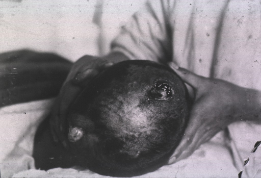 <p>View of a patient's open wounds located on top and at the back of his head.</p>